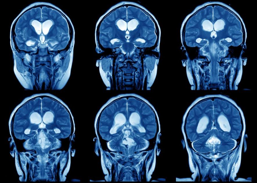 Pistas genômicas sobre a evolução de nossos cérebrosplásticos